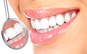 otbelivanie_zubov