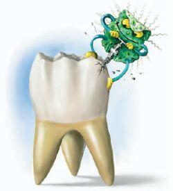 болят зубы от сладкого