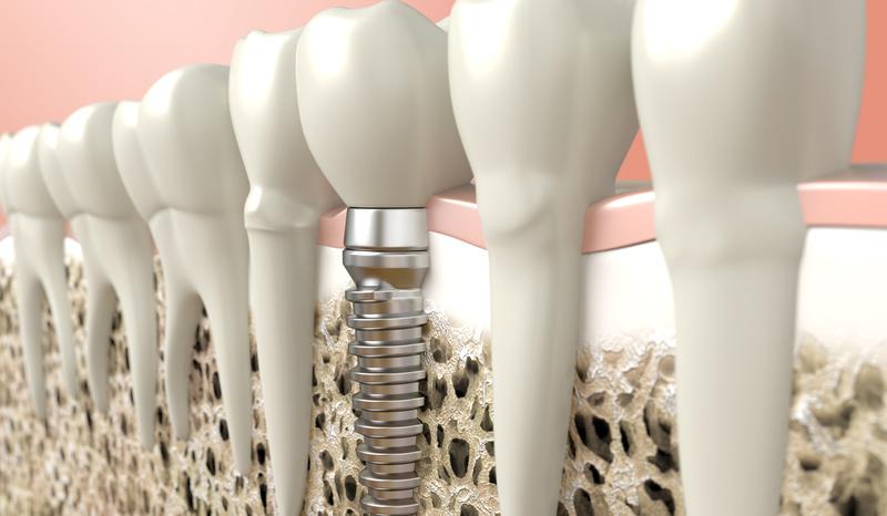 имплантация зубов в Оренбурге