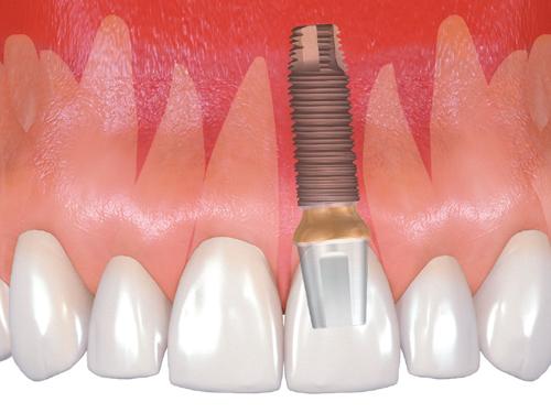 быстрая имплантация зубов в Санкт-Петербурге