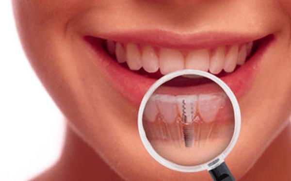 имплантация зубов в Оренбурге цены