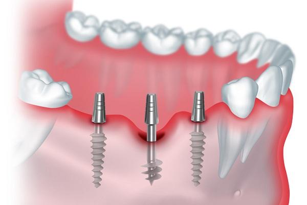 Базальная имплантация — современный способ вернуть красоту улыбки