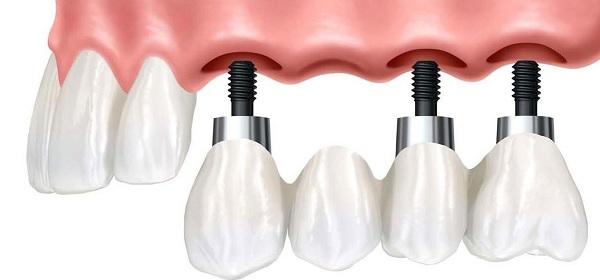 имплантация зубов в Волгограде цены