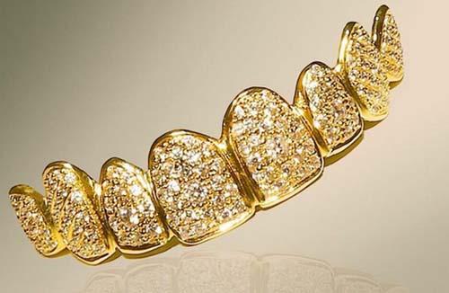 имплантация зубов в Йошкар-Оле