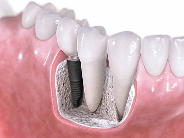 установка зубного импланта этапы