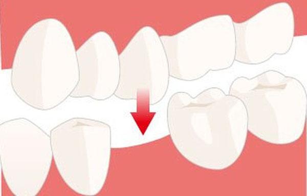 имплантация зубов Тамбов