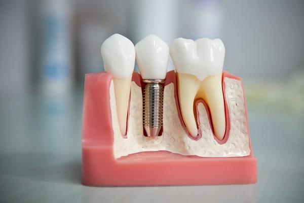 имплантация зубов в Тамбове цены