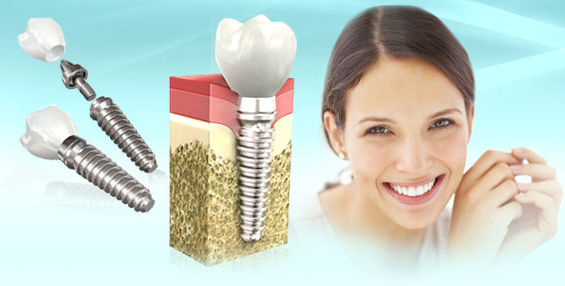 имплантация зубов в иваново