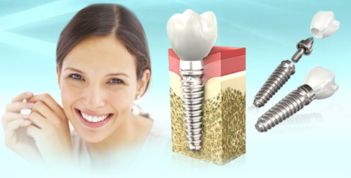 имплантация зубов Кострома