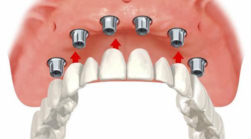 методика имплантации зубов