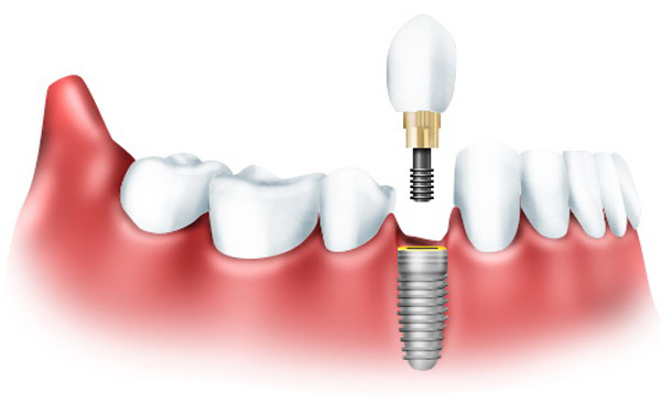 зубной имплантант что это такое