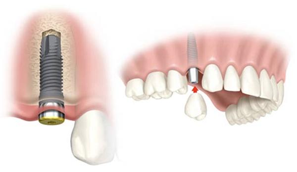 полная стоимость имплантации одного зуба