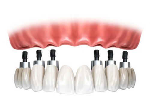 новое в имплантации зубов