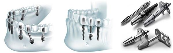 сколько длится имплантация зуба