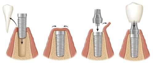классическая или базальная имплантация