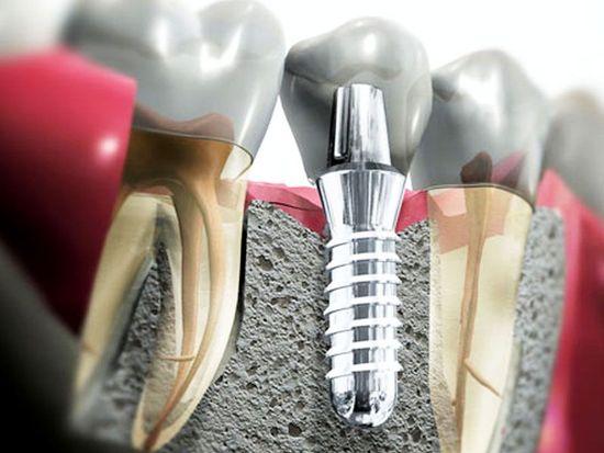 имплантация зубов сайт