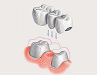 зуб под мостом болит