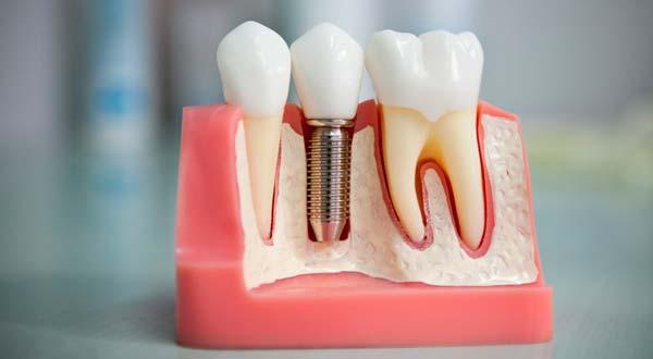 сравнение методов имплантации зубов