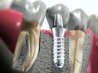 имплантация зубов недорого Москва