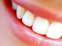 имплантация зубов в Воронеже