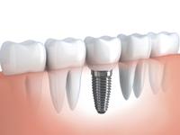 имплантация зубов в Липецке отзывы