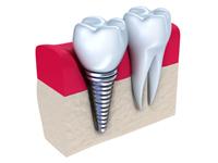 имплантация зубов в Новокузнецке цены