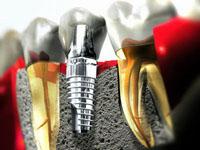этапы установки имплантов зубов