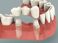 способы имплантации зубов