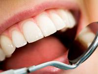 является ли имплантация зубов дорогостоящим лечением