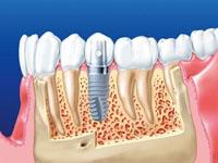 как делают имплантацию зубов