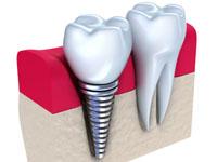 полная стоимость имплантации зуба