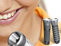 где лучше сделать имплантацию зубов