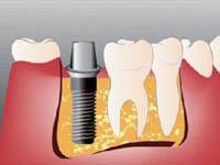 стадии имплантации зубов