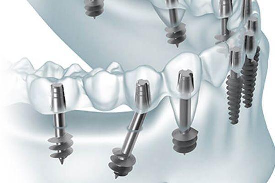 метод базальной имплантации зубов