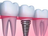 имплантация зубов с немедленной нагрузкой