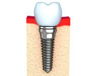 остеоинтеграция в стоматологии
