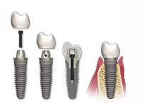 имплантация зубов с коронкой