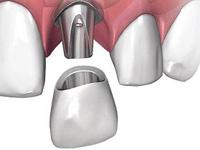 из какого материала делают зубные импланты