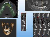 моделирование при базальной имплантации