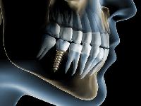 Эволюция базальной имплантации