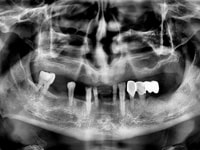 зубные сегменты