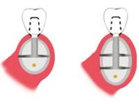 строение классического импланта