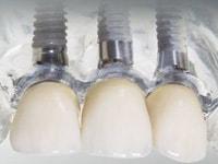 биосовместимые материалы в стоматологии