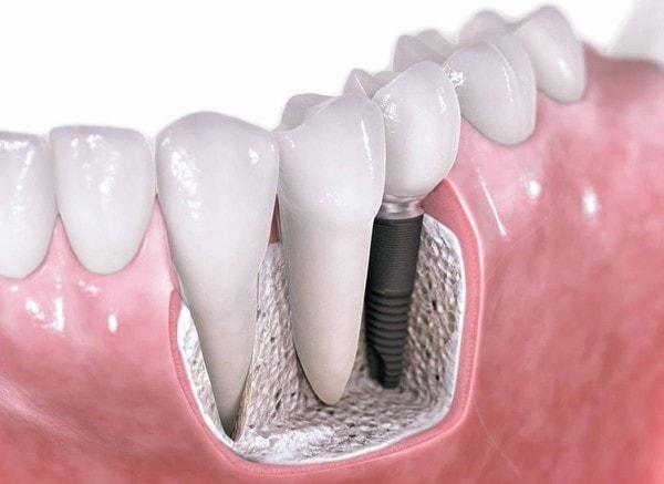 Заменить все зубы на импланты цена