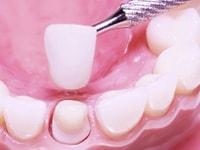 примерка коронки на зуб