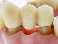протезирование зубов цирконий