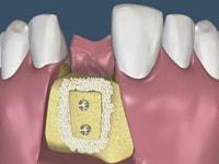 имплантация при атрофии кости