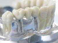 День имплантации зубов