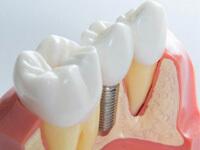 Базальный метод имплантации зубов
