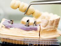 мостовидные протезы ортопедическая стоматология